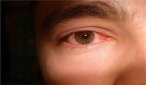 глаза чешутся и красные аллергия