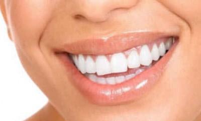 что делать, чтобы зубы были белыми?