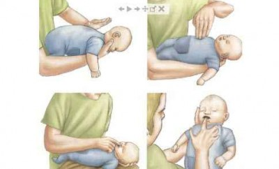 Что делать, если ребенок подавился