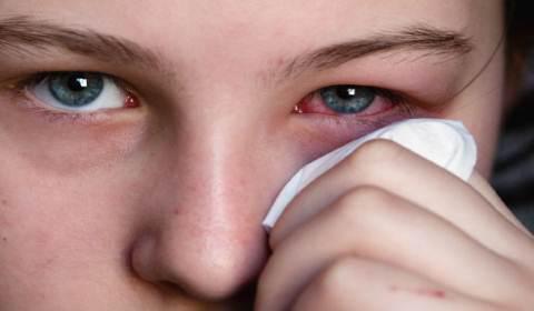 Опух глаз: что делать? 61