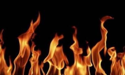 Что делать при ожоге?