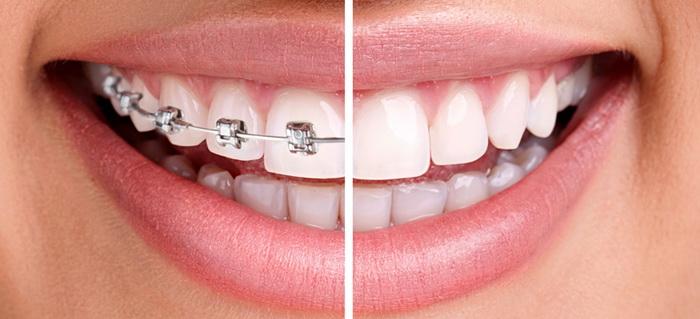Как сделать красивые ровные зубы
