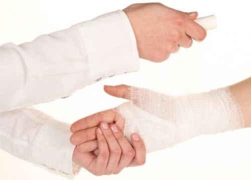 Что делать при растяжении руки