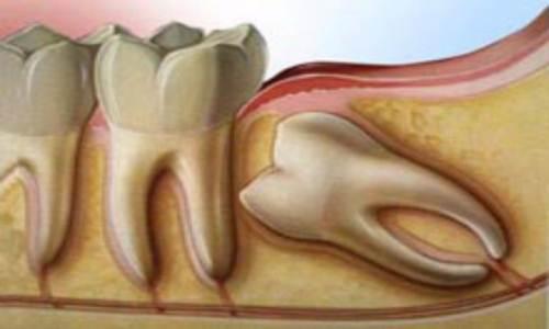 Режется зуб мудрости, что делать с болью?