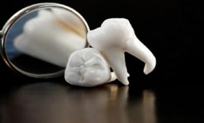 Откололся зуб – что делать?