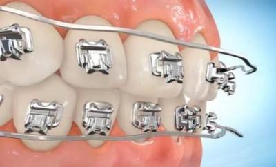 Кривые зубы – что делать?