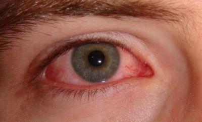 Красный глаз, что делать?