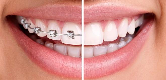 brekety-dlya-zubov